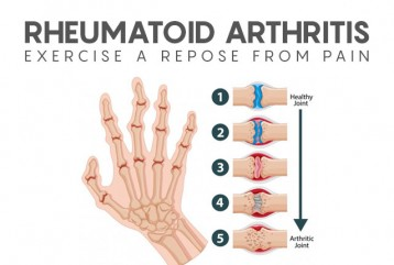 Rheumatoid Arthritis :Exercise a repose from pain.