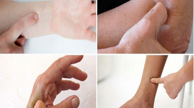 Acupressure Treatment to Heal 8 Most Common Body Pains